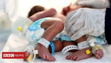Photo of Yemen: Plea to save conjoined twins 'in critical condition'