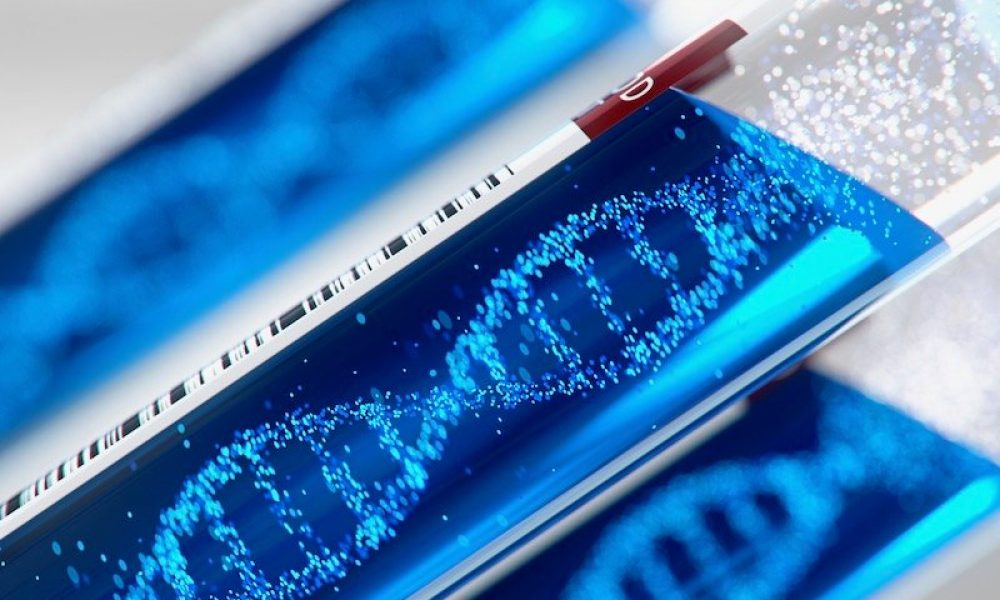 cambridge-univ.-researchers-develop-dna-test-for-covid-19's-secondary,-hospital-acquired-infections