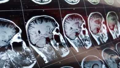 Photo of Canon Medical expands reach of its MRI artificial intelligence programs