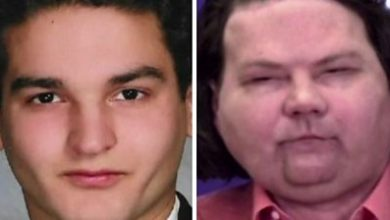 Photo of Face and hand transplant patient: 'I want to get back to normal living'
