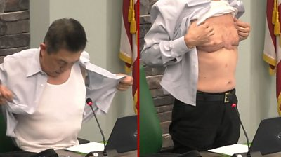 moment-asian-american-army-veteran-shows-his-scars