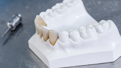 Photo of Smile More Dental Clinic : Zirconia Crowns in the Philippines