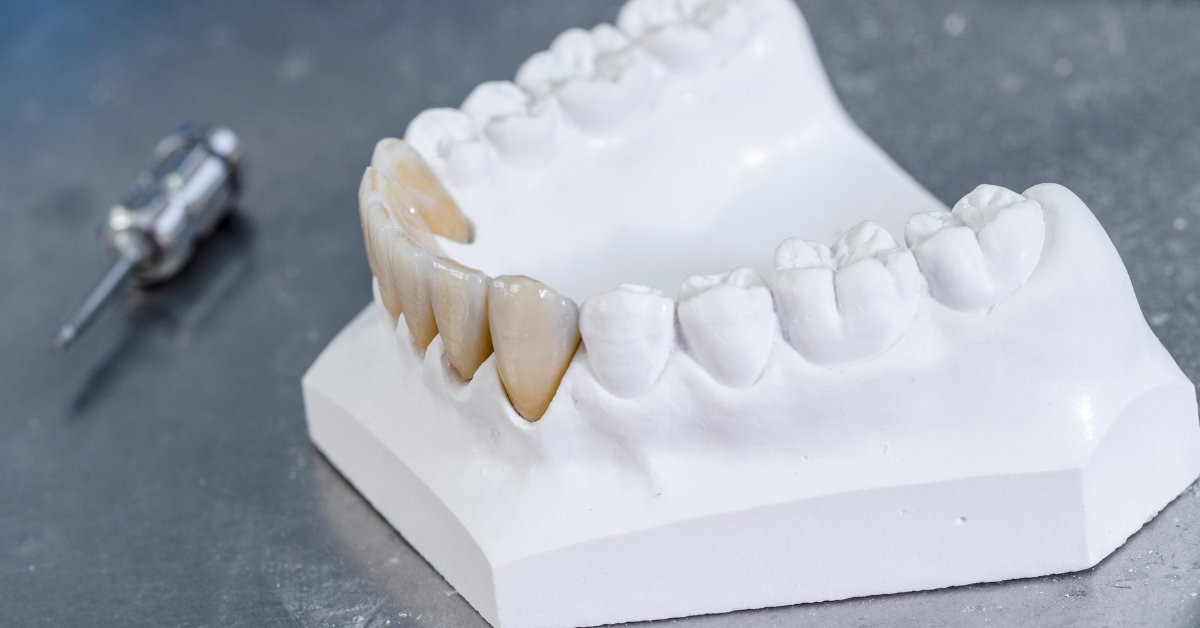 smile-more-dental-clinic-:-zirconia-crowns-in-the-philippines