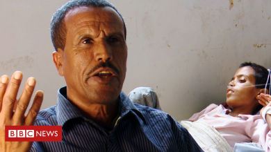 Photo of Tigray war: Walking three days to find a hospital