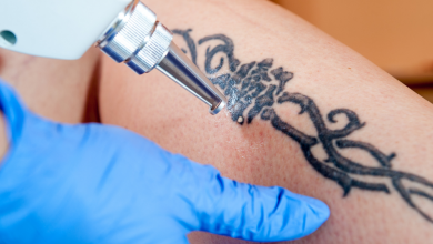 Photo of Looking for Laser Tattoo Removal Service?