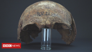 Photo of 5,000-year-old man was 'oldest plague victim'