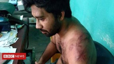 Photo of India's Covid doctors demand action after attacks