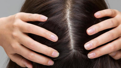 Photo of Looking For The Best Treatment For Scalp Scabs?