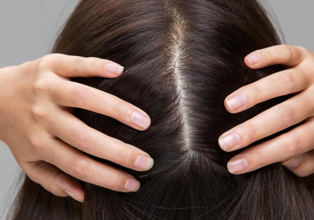 looking-for-the-best-treatment-for-scalp-scabs?