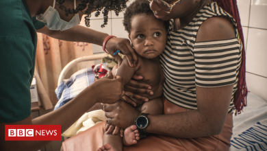 Photo of DR Congo: Measles vaccines missed because of Covid focus