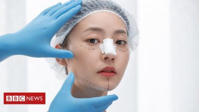 Photo of Plastic surgery booming in China despite the dangers